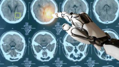 تصویر از بسته پزشکی انگلیس برای تشخیص و درمان سرطان با هوش مصنوعی