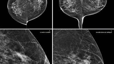 تصویر از قدرت هوش مصنوعی در شناسایی علائم سرطان پستان
